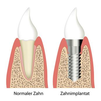 Zahnarzt Bingen am Rhein